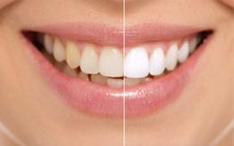 зубы как стоматолог on Instagram - mulpixcom